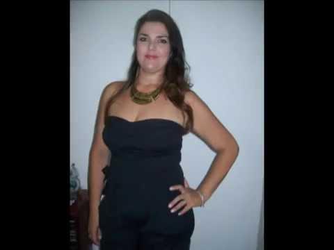 Karina antes e depois da Cirurgia Bariátrica ByPass