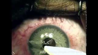 getlinkyoutube.com-Refractive surgery ( PRK ) after brightocular artificial iris implantation