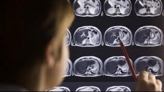 """getlinkyoutube.com-تأثير الأفلام الإباحية """" الجنسية """" على الدماغ :: د.عدنان ابراهيم"""