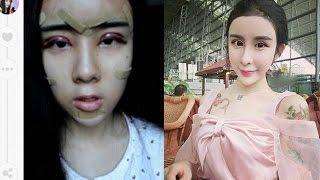 getlinkyoutube.com-Niña de 15 años se sometió a cirugías plásticas para recuperar a su ex novio