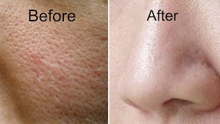 How to Get Rid of Large Pores in 3 Days | Get Smooth, Fairer and Tighter Skin
