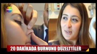 getlinkyoutube.com-20 Dakikada Burun Ucu Estetiği!