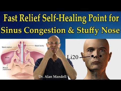 Fast Relief Self-Healing Point for Sinus Congestion, Stuffy Nose, Headaches - Dr Mandell