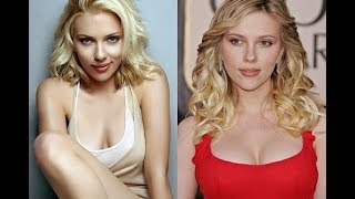 getlinkyoutube.com-Celebrities Plastic Surgery transformations 2015 - 40 Stars Before After Plastic Surgery