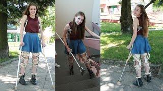 getlinkyoutube.com-Hailey KAFO Leg Braces