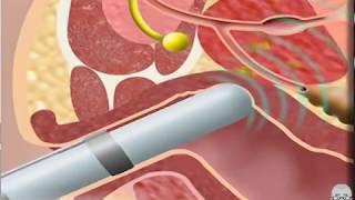 getlinkyoutube.com-¿Cómo se hace una Biopsia de Próstata para Diagnosticar un Cáncer de Próstata?