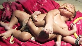 getlinkyoutube.com-'God baby' born in India with four arms and four legs