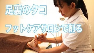 getlinkyoutube.com-足裏のタコ フットケアサロンで削る