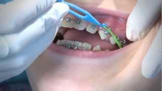 getlinkyoutube.com-How to Wear Orthodontic Elastic Bands