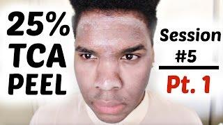 getlinkyoutube.com-Chemical Peel | 25% TCA Peel Application HD | Session 5