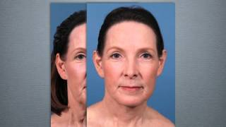 getlinkyoutube.com-Neck Lift Surgery Explained by Dr. Michael Bogdan