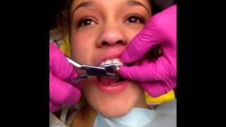 getlinkyoutube.com-Getting braces off !