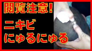 getlinkyoutube.com-閲覧注意!ニキビにゅるにゅる!膿ぷしゅー!頭にできた膿を潰す、そして、絞り出す!美人の奥さんの顔にかかっちゃったしw