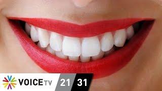 แก้ปัญหาให้ฟันขาวดั่งใจ ด้วยวิธีฟอกธรรมชาติ ?