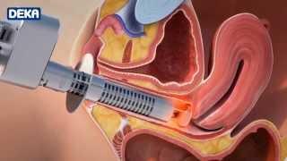 getlinkyoutube.com-Rejuvenecimiento Vaginal Láser - Dr. Juan Manuel Tovar