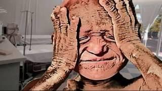 getlinkyoutube.com-El niño que se convirtio en piedra