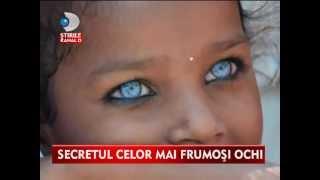 getlinkyoutube.com-Супер редкая мутация негр с голубыми глазами