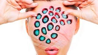 getlinkyoutube.com-Trypophobia Cure! How To Treat Trypophobia