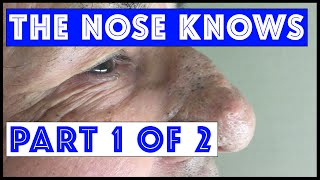 """getlinkyoutube.com-The Nose Knows: Part I """"Mr. Wilson's"""" Blackhead Extractions"""