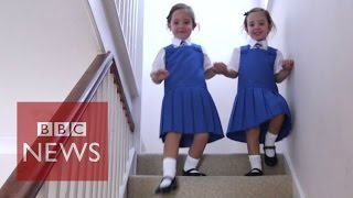 """getlinkyoutube.com-Twins conjoined at birth and """"unlikely to survive"""" start school - BBC News"""