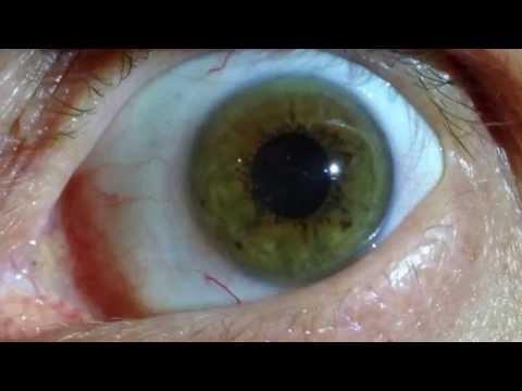 ✿ Iridology ✿ - Eye Review 25 ★★★★★