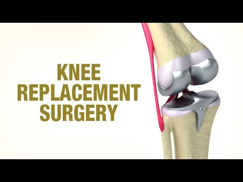 Knee Replacement Surgery - Dr. Vivek Allahabadia - Joint plus