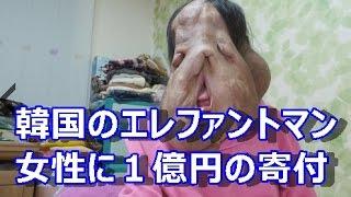 getlinkyoutube.com-韓国のエレファントマンの女性 1億円の寄付金が集まる