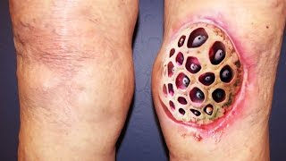 getlinkyoutube.com-Top 100 Trypophobia Disease Photos, Ever!  NSFE