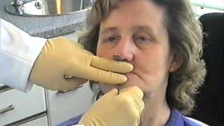 getlinkyoutube.com-Denture Procedure