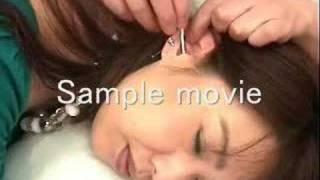 getlinkyoutube.com-耳掃除 Ear cleaning