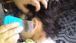 Niño infestado de piojos | ¡¡¡INCREIBLE!!!