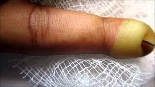 getlinkyoutube.com-Index Finger Blister Popping
