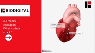 getlinkyoutube.com-3D Medical Animation - What is a Heart Attack?