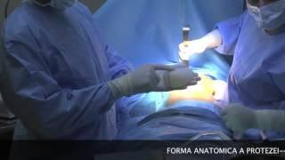 getlinkyoutube.com-Operatia de Marire sani, Dr Raul Chioibas