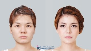 getlinkyoutube.com-let me in korean show (jawline, rhinoplasty, cheekbone reduction) plastic surgery before and after
