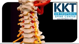 getlinkyoutube.com-كي كي تي قطر هو علاج غير جراحي لالام الظهر و العمود الفقري KKT Qatar