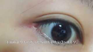 getlinkyoutube.com-【ゆなの整形日記】目尻切開 目尻下げ 手術後 経過2か月