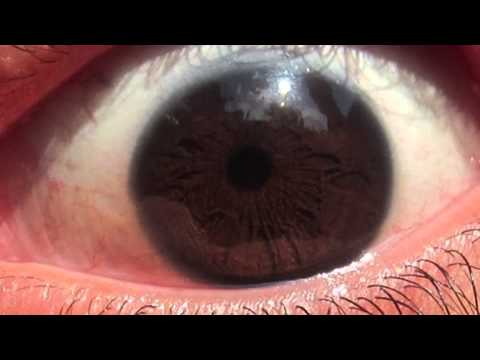 ✿ Iridology ✿ - Eye Review 1 ★★★★★
