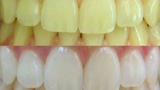 getlinkyoutube.com-Como clarear os dentes