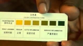 getlinkyoutube.com-cek tingkat keputihan, keputihan berbau dan berwarna