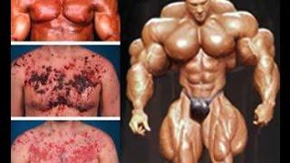 getlinkyoutube.com-Esteroides, una Mala Opción para Aumentar los Músculos
