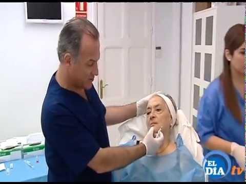 Antes y despues Rejuvenece sin cirugía Tenerife Dr Jorge Alvarez
