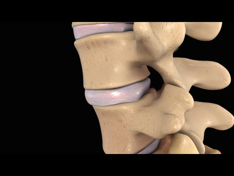 Lumbar Disc Injury with Intradiscal Electrotherapy (IDET) Surgery -nV4ILsaVSXc
