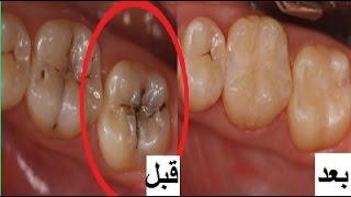 getlinkyoutube.com-وصفة لازالة تسوس الاسنان والجير فى يوم واحد