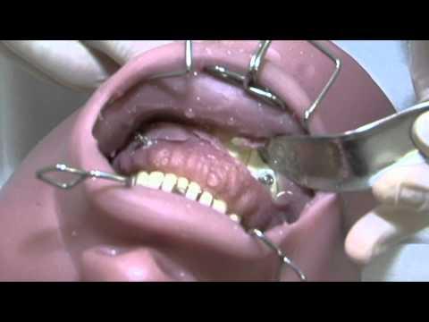 Simulador Cirurgico para Maxilofacial  (MAX) : Técnica Bloqueio Maxilo Mandibular