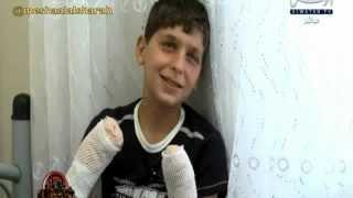 getlinkyoutube.com-طفل سوري مصاب كلامه تدمع له العين