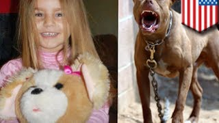 getlinkyoutube.com-فتاة ينهشها كلب بيتبول يبلغ ضعفي حجمها ومن ثم تموت