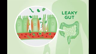 getlinkyoutube.com-5 Causes of A Leaky Gut And The Symptoms it Causes