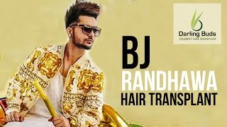 getlinkyoutube.com-BJ Randhawa correction of bad hair transplant  at Darling Buds Dr Bhatti