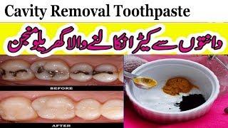 Tooth Care In Urdu/Hindi || Homemade Cavity Removal Toothpaste || Garelu Manjan width=